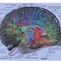 MRI Neural Brain Map Overlay on Human Brain Label Diagram