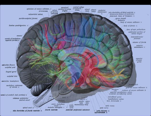Human Brain Labels Overlay with Weeden MRI