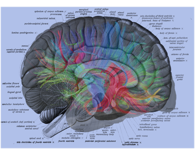 Human Brain Labels Overlay with Weeden MRI
